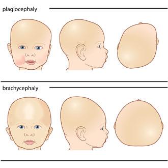 Learning | Appletree Orthotics | Toronto Plagiocephaly, Orthotics ...